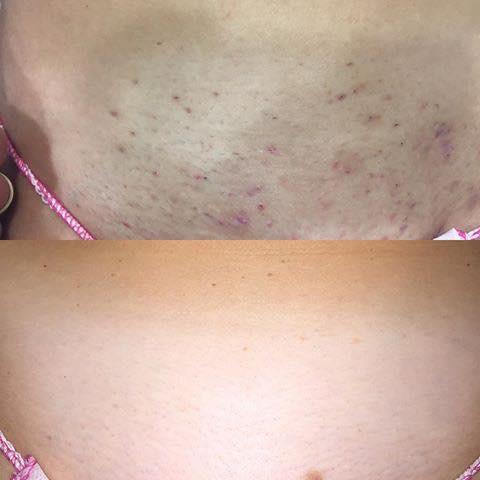 Follicolite da depilazione prima e dopo il trattamento di epilazione permanente con metodo EpilAmbra