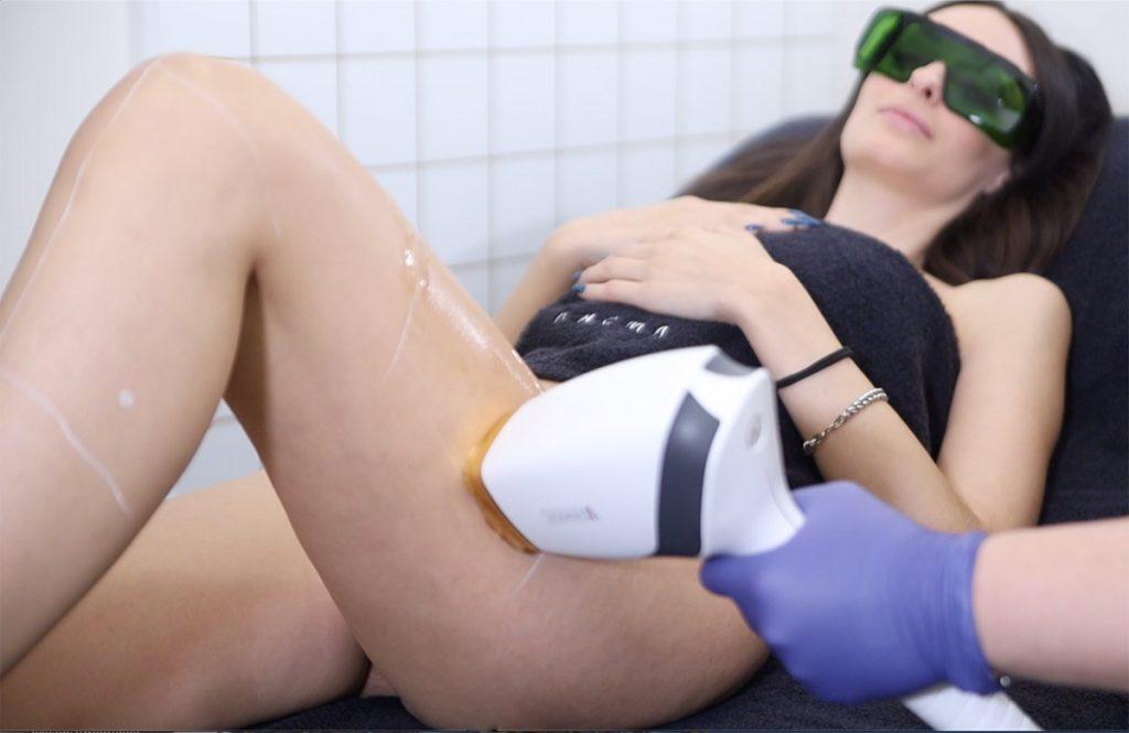 Sedute di epilazione permanente con laser Monolith EpilAmbra